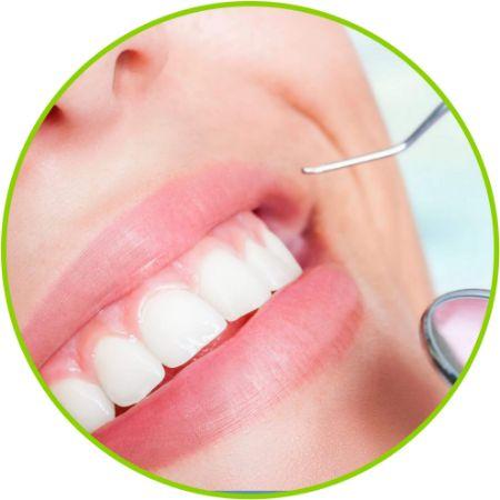 Imagen para la categoría Blanqueamiento dental láser